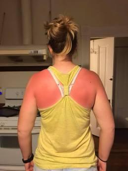 Michaela sunburn