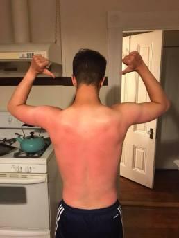 Sean sunburn
